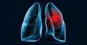 Un nou test de detectare a cancerului la plamani